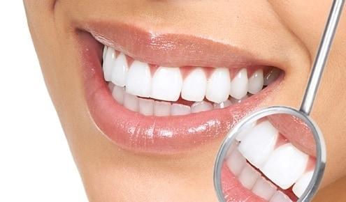 limpieza dental de rutina